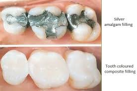 light cure composite filling how does my dentist do a filling eleventeengreen com