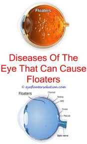 bright flashes of light in eye eye drops for eye floaters eye vertigo relief and remedies
