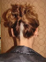 hairstyles for brain surgery patients the hair crack are they for real