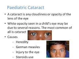 Cataract Leads To Blindness Due To Child Eye Care And Squint What We All Should Know Ppt Video