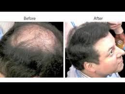 hair weaves for balding men hair loss page 2