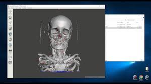 3d Medical Software Creating 3d Printable Medical Models For Free Embodi3d Com 3d