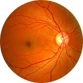What Are The Chances Of Going Blind From Lasik Ask The Lasik Surgeon Allaboutvision Com