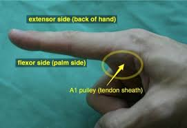 trigger finger causes symptoms treatment