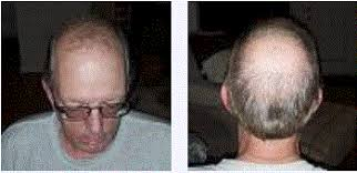 prescreened hair transplant physicians why does my hair transplant surgeon recommend two procedures