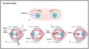 Bleeding Eyes Meme - eye muscle surgery procedure recovery blood pain complications