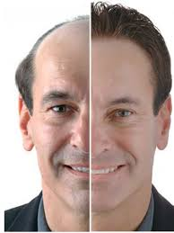best hairtransplant in the world one of a best hair transplant surgery destination that people