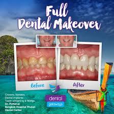 before after dental getaways