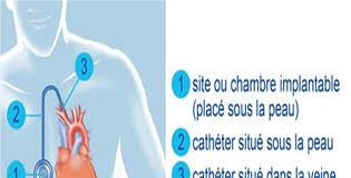 pose chambre implantable utilisation de lachambre a catheter implantable cci ou porth a cath