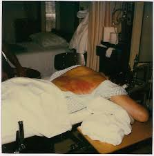 Stryker Frame Bed 1984 Road Rash Halo Vest Traction Broken C 2