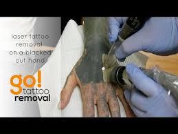 philadelphia tattoo removal mp3 download u2013 mp3skull