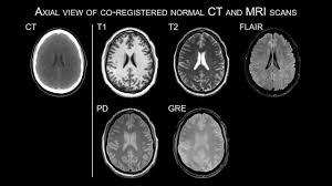 Axial Mri Brain Anatomy Tag Mri Brain Anatomy Coronal Anatomy Human Chart