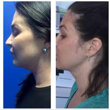 how to make a double chin look less noticable eith hair charlotte kybella for double chin urban skin solutions