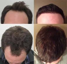 hair transplant month by month pictures see this amazing hair transplant after 9 months