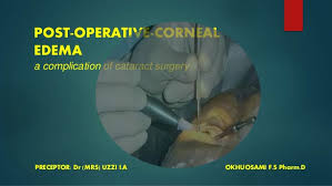 light streaks after cataract surgery post operative corneal edema