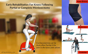 My Knee Hurts When I Go Down Stairs by Knee Rehabilitation Following Meniscectomy Meniscal Repair