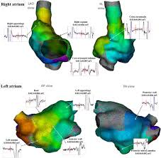 Ccw Map Selection Of Critical Isthmus In Scar Related Atrial Tachycardia