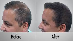 home remedies for hair loss for over 50 hair fall problem looking for a treatment that works without the