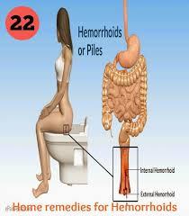 Home Tricks 17619 Best Hemorrhoid Pins Images On Pinterest Natural Remedies