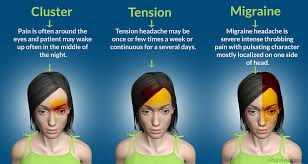 flashing lights in eye stroke of headache migraine tension cluster stroke and tia