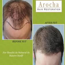 how thick is 1000 hair graft arocha hair restoration 69 photos cosmetic surgeons 3005
