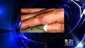 led light skin cancer gel manicure uv light poses possible cancer risk youtube