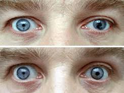 Color Blindness Contacts Prosthetic Contact Lenses Allaboutvision Com
