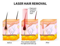 permanent laser hair removal victoria u0027s cosmedi spa launceston tas