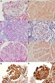 clinical biopsy and mass spectrometry findings of renal gelsolin