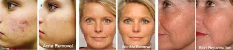 red light therapy skin benefits red light therapy benefits of light box products