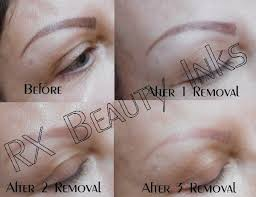 permanent makeup removal and corrections