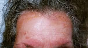 allergic reaction to titanium suddenly allergic
