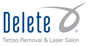 tattoo removal service in phoenix az delete tattoo removal