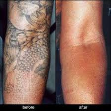 after 2nd laser session one day tattoo removal process