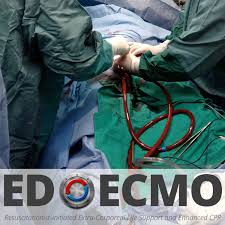 edecmo episode 12 u2013 the nurse based ecmo program at sharp memorial