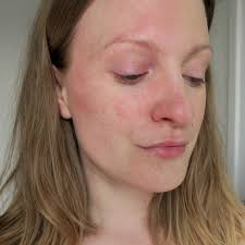 how to survive warm weather with rosacea ad talonted lex