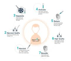 stem cell fue treatment stem cell treatment for hair loss