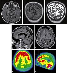 Cortical Blindness May Result From The Destruction Of Imaging Of The Optic Chiasm And Retrochiasmal Visual Pathways