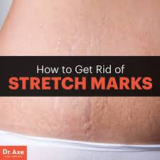 Stretch Marks Meme - how to get rid of stretch marks dr axe