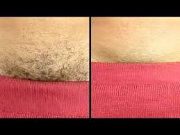 puvic hair pics permanently remove pubic hair instantly using natural cream youtube