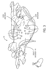 patent us8265752 system and method for assessing atrial