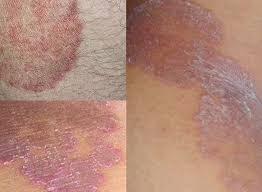 Obat Gatal nama salep obat gatal gatal pada kulit paling manjur obat sipilis