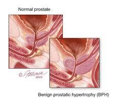 prostate enlargement bph comprehensive urologic care
