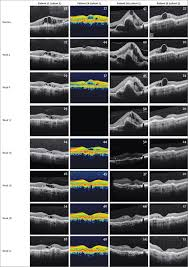 intravitreous injection of aav2 sflt01 in patients with advanced