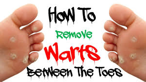 planters wart on foot how to remove warts between the toes remove warts between the