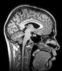 Sagittal Brain Mri Anatomy Neuroimaging Wikipedia