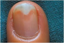 nail bed pain fingernail separation from nail bed how you can do it at home