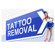 tattoo removal kijiji in ottawa buy sell u0026 save with