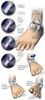 High Ankle Sprain Anatomy Ankle Sprains Central Coast Orthopedic Medical Group
