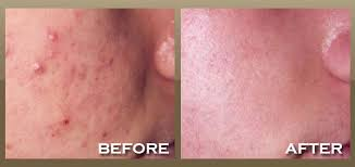 light therapy for acne scars skinnpeccable photodynamic therapy los angeles
